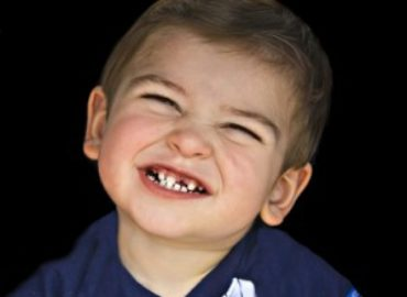 A Mom's Concern About Her Child Losing a Baby Tooth too Early
