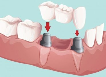 Blog Dr Molly Rodgers Dental Edmonton Smiles