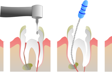 Do You Need A Root Canal Therapy?